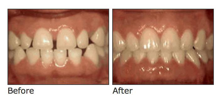 Chad Johnson Ortho Spacing of teeth