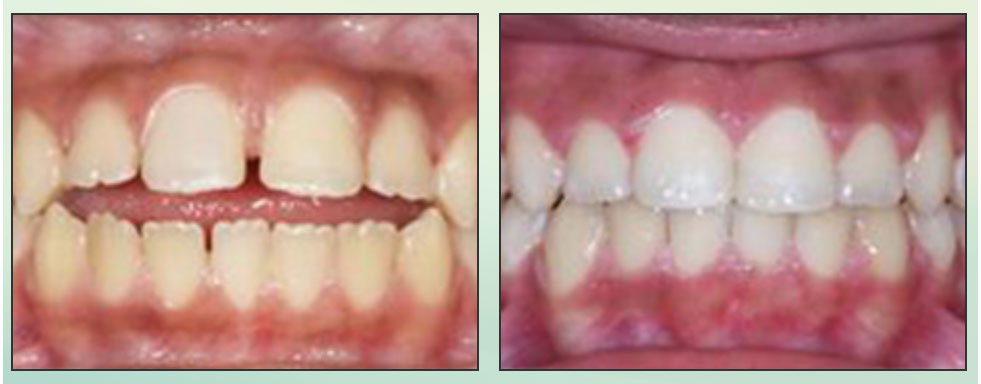 Chad Johnson Orthodontic Before and After Photo_1