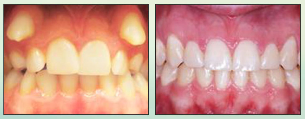 Chad Johnson Orthodontic Before and After Photo_10
