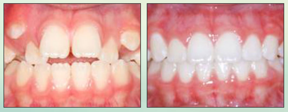 Chad Johnson Orthodontic Before and After Photo_11