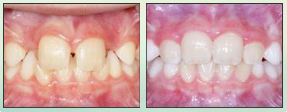 Chad Johnson Orthodontic Before and After Photo_2