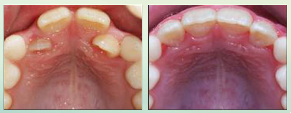 Chad Johnson Orthodontic Before and After Photo_3