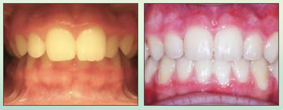 Chad Johnson Orthodontic Before and After Photo_4