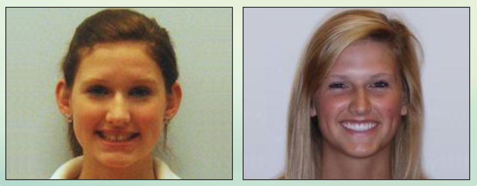 Chad Johnson Orthodontic Before and After Photo_5