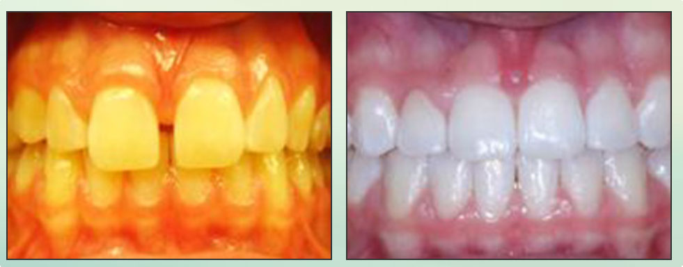 Chad Johnson Orthodontic Before and After Photo_6