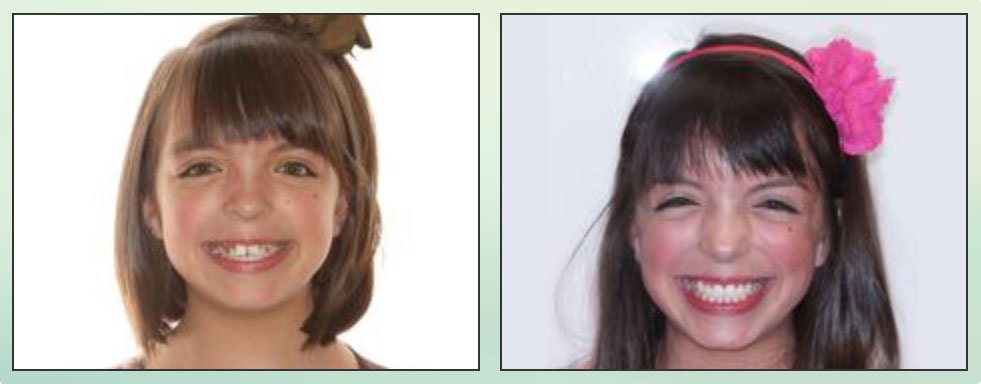 Chad Johnson Orthodontic Before and After Photo_7
