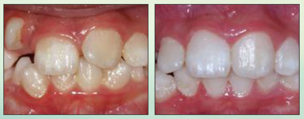 Chad Johnson Orthodontic Before and After Photo_8