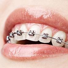 Chad Johnson Orthodontics The Damon Smile System Brackets