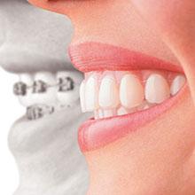 Chad Johnson Orthodontics Invisalign