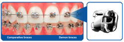 Chad Johnson Orthodontics The Damon Smile System
