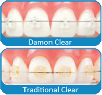 Chad Johnson Orthodontics The Damon Clear System