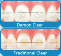 Chad Johnson Orthodontics The Damon Clear System