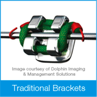 Chad Johnson Orthodontics The Damon Clear System vs Traditional Brackets