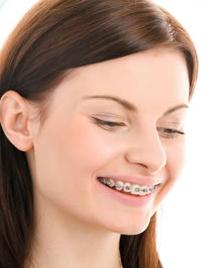 Chad Johnson Orthodontics The Damon Smile System